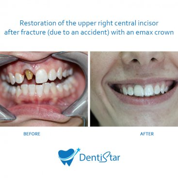 Emax Crown Restoration