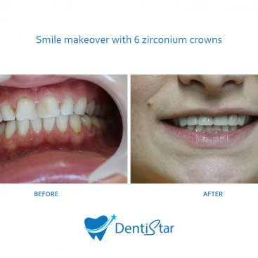 Smile makeover with 6 zirconium crowns