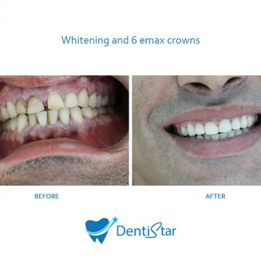 Whitening & Emax Crowns