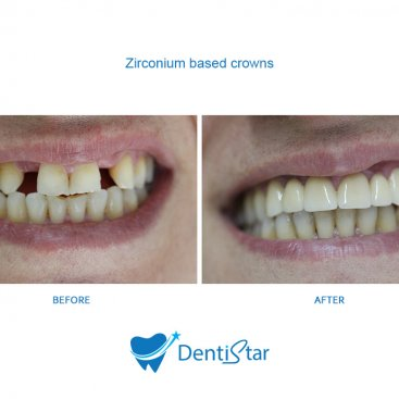 (English) Zirconium Based Crowns