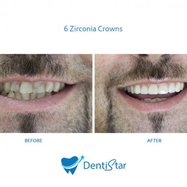 6 Zirconia Crowns